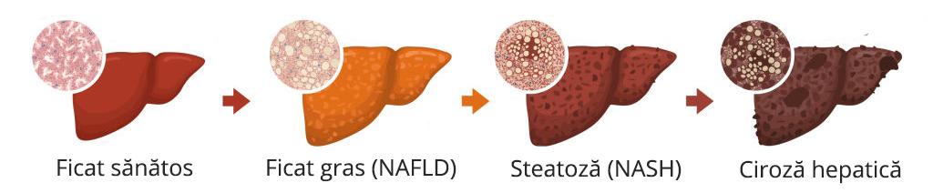 Stadii ficat gras
